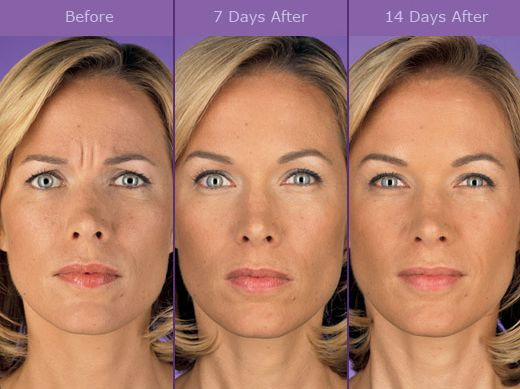 What Is Botox And How It Relates To The Face The Blog